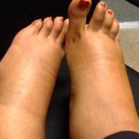 zware-benen-170_400_04